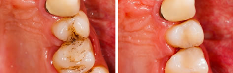 Airflow Stain Removal - Valley Dental Practice