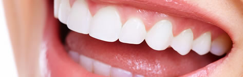 Periodontal Therapy  - Valley Dental Practice