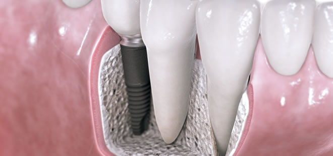 Dental Implants - Broadway Dental Care - SmileArt Dental