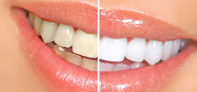 Teeth Whitening - Broadway Dental Care - SmileArt Dental