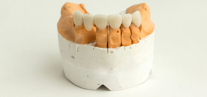 Cosmetic Veneers - Broadway Dental Care - SmileArt Dental