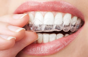 Clear Orthodontics Aligners - Valley Dental Practice